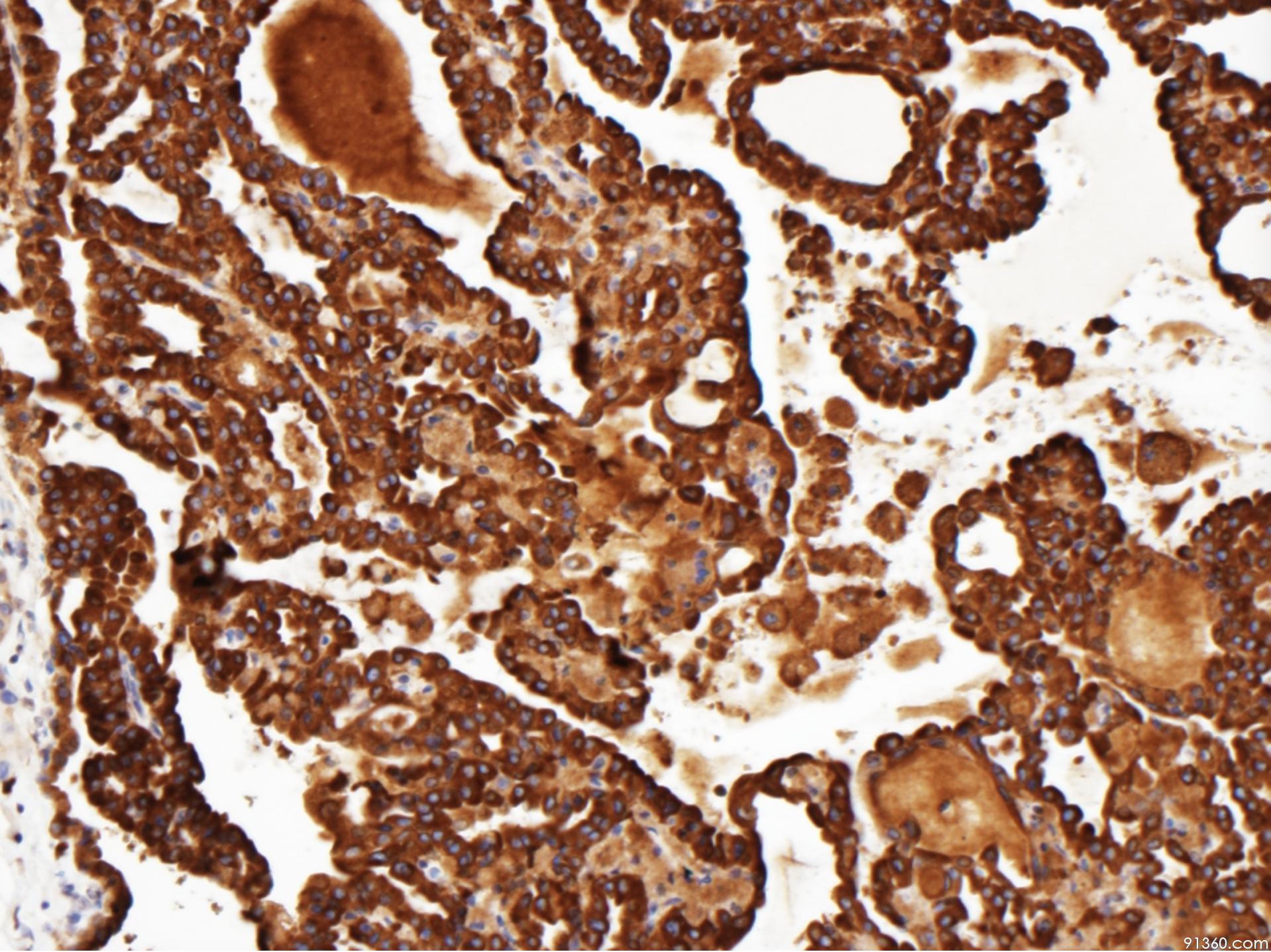 图8 mammaglobin.png
