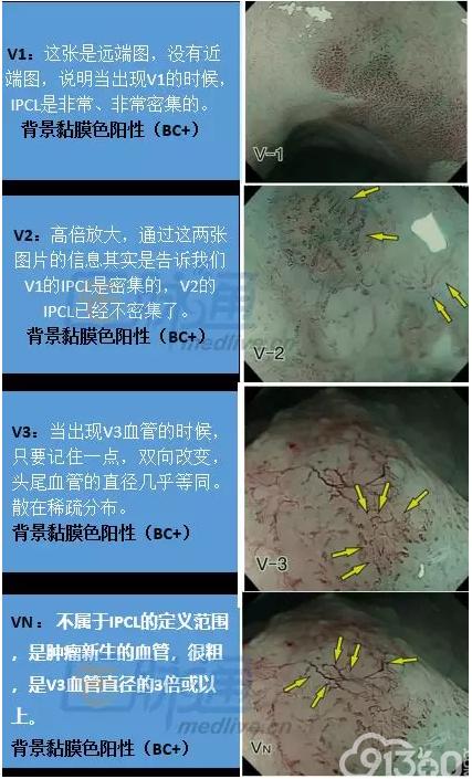 早期食管癌诊断基础