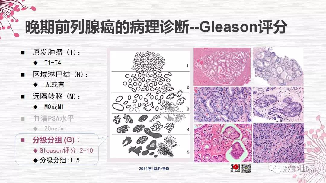 晚期前列腺癌的病理学诊断