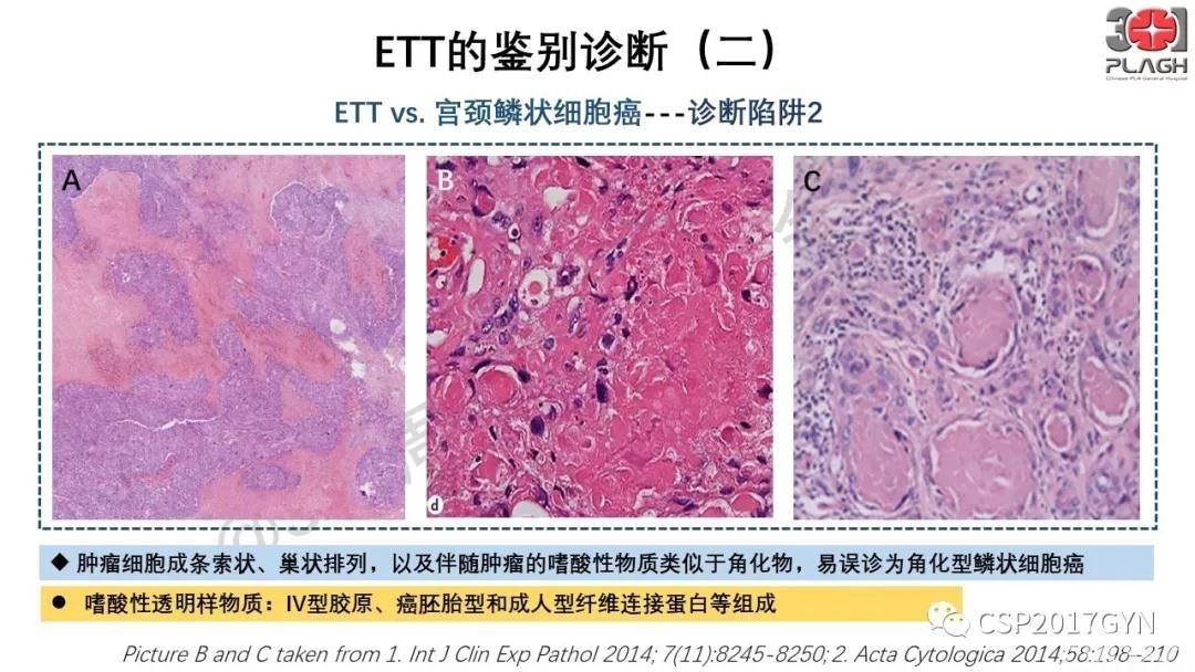 中间型滋养细胞肿瘤的诊断及鉴别诊断