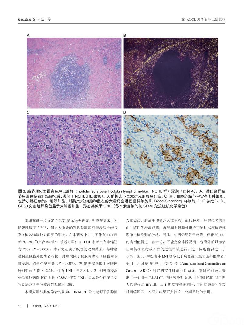 乳腺植入物相关性间变性大细胞淋巴瘤患者淋巴结累犯的临床病理特征和患者的预后影响