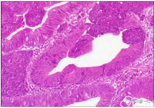 医学美图:胃神经内分泌肿瘤的前世今生