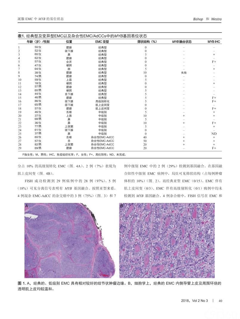 涎腺上皮-肌上皮癌中MYB的易位状