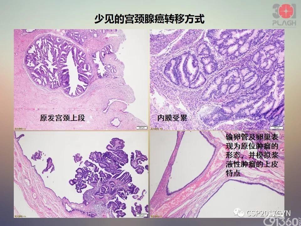 眼科解剖学图谱_宫颈腺癌的临床病理研究进展 - 91360智慧病理网