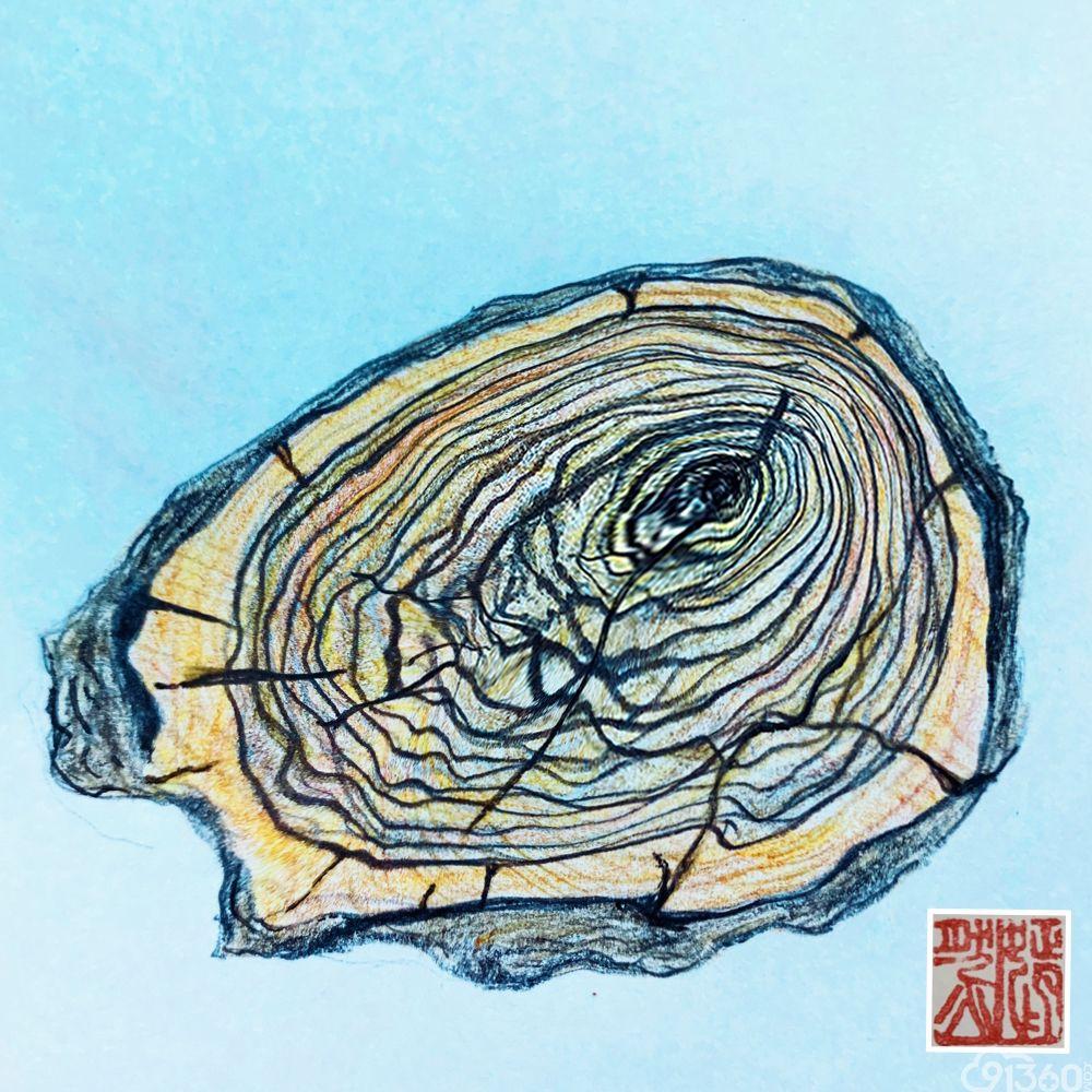 手绘病理世界——《年轮》