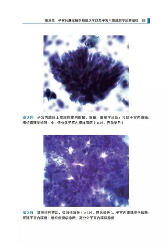 子宫内膜细胞病理学图谱