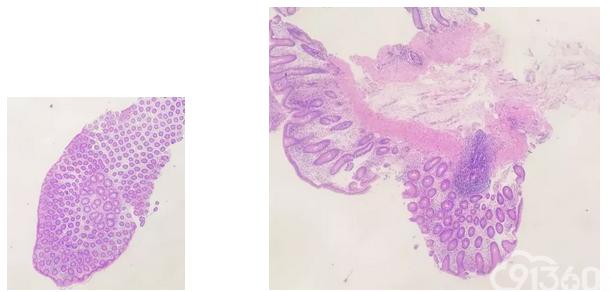 GI黏膜活检标本HE切片的制备