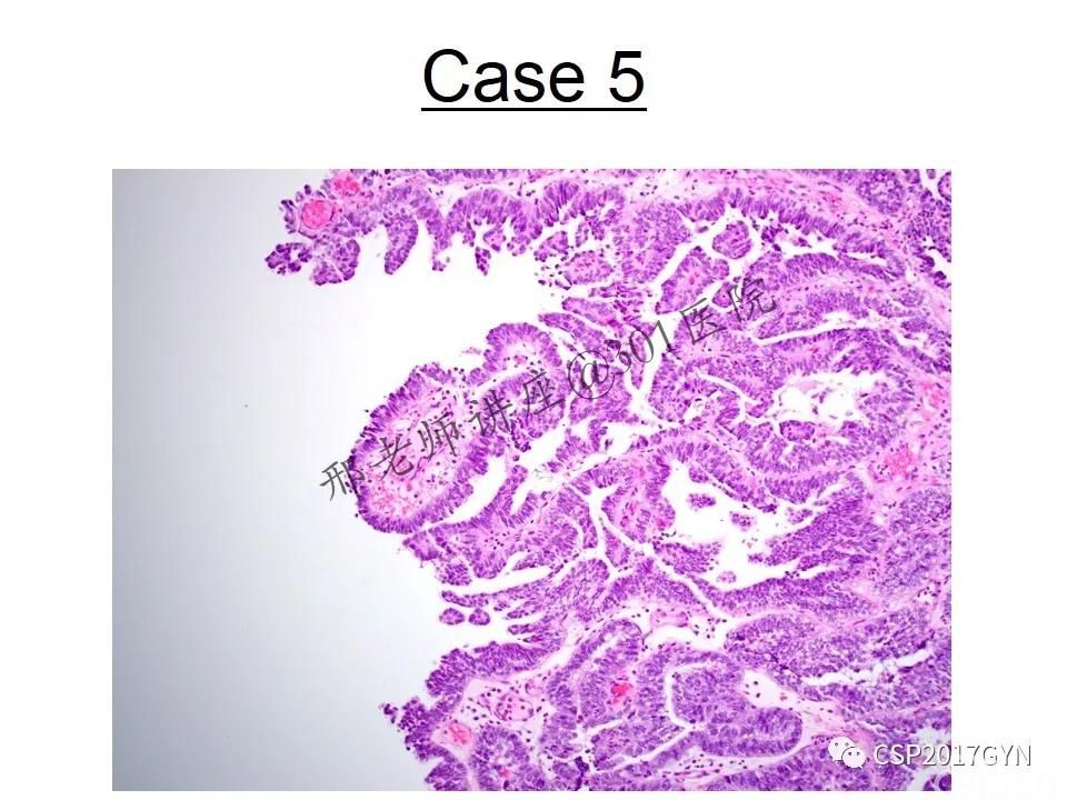 典型妇科病理病例的探究与分析