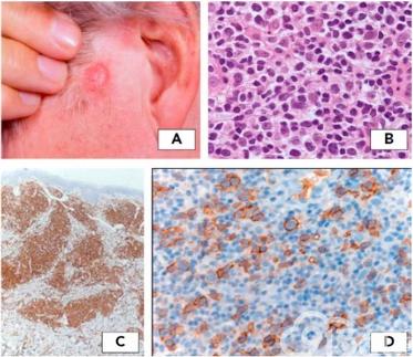 原发皮肤淋巴瘤2018版WHO-EORTC共识分类更新出炉