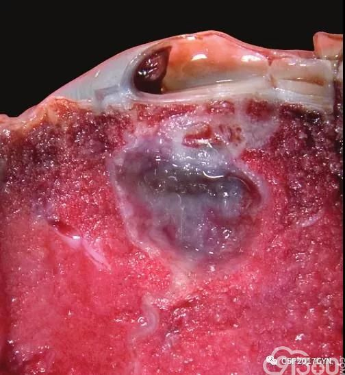 图19、肉眼可见的胎盘隔内假性囊肿