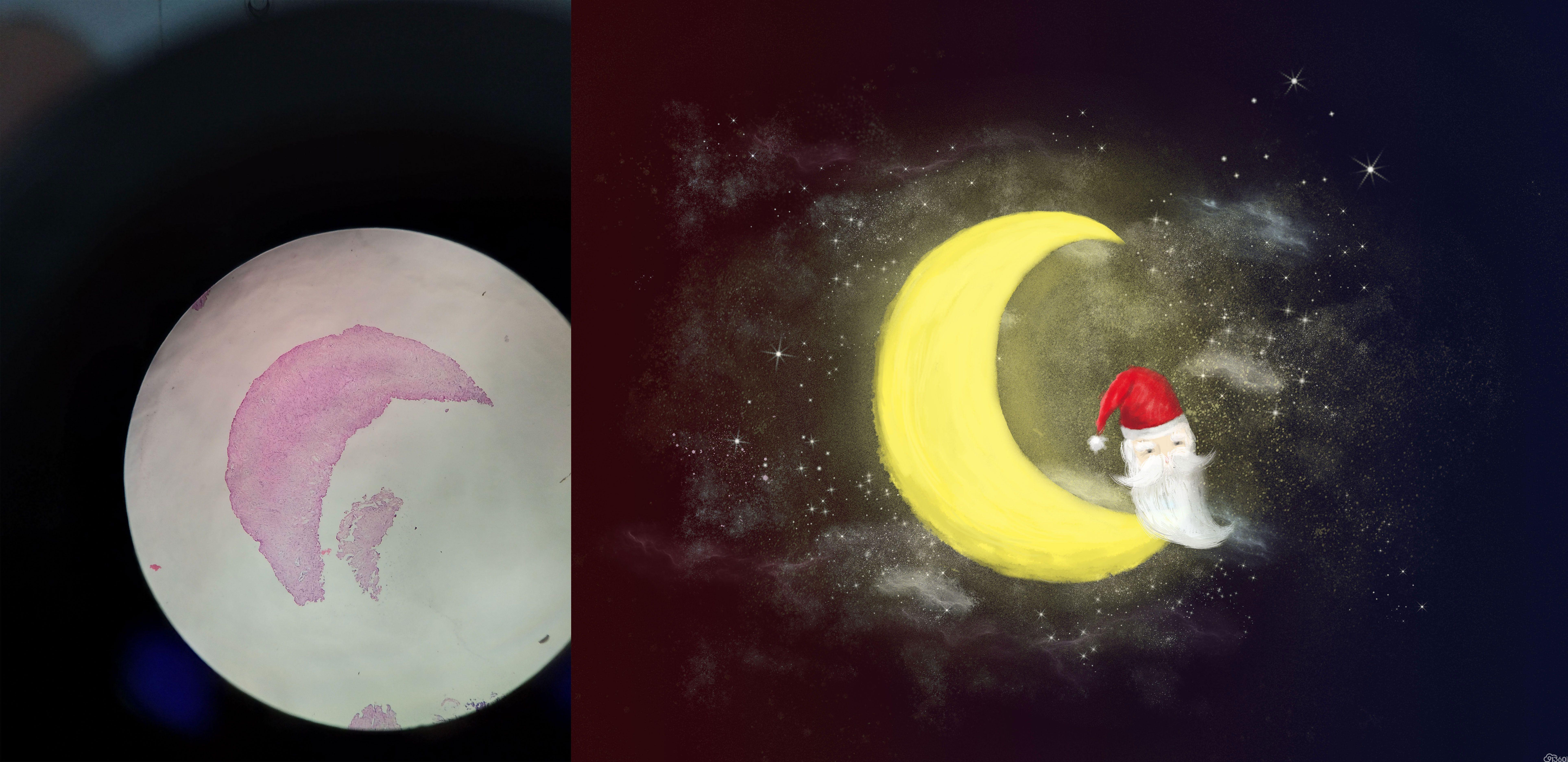 手绘病理世界——《月亮》