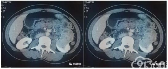 病理文汇 丨 一例罕见分型肾脏肿瘤的病理解析