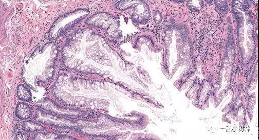 内镜医师学病理知识(四)无蒂锯齿状腺瘤病理图谱