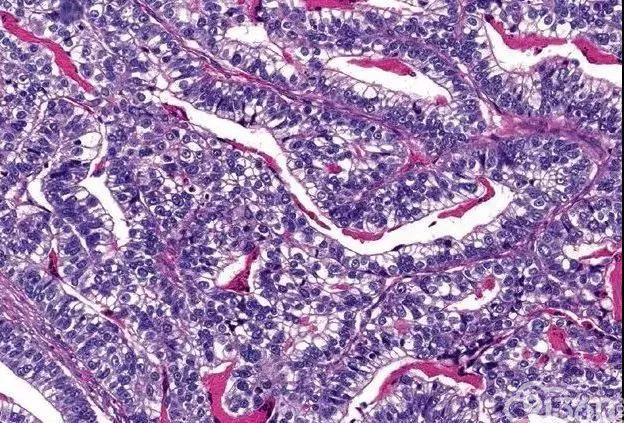 文献复习---胃肝样腺癌