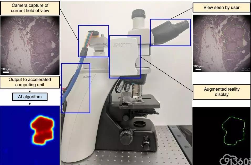 《自然》子刊:病理AI神外挂来了!谷歌科学家给普通显微镜开发了个智能增强现实「眼睛」,可实时准确地帮医生圈出癌症病灶丨科学大发现