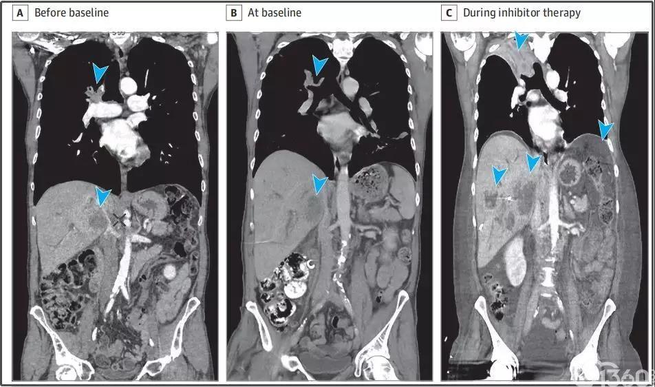 热潮背后的冷思考:肿瘤超进展,免疫治疗不得不面对的难题!