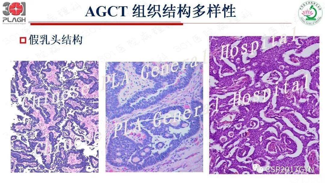 卵巢性索-间质肿瘤病理学诊断及进展