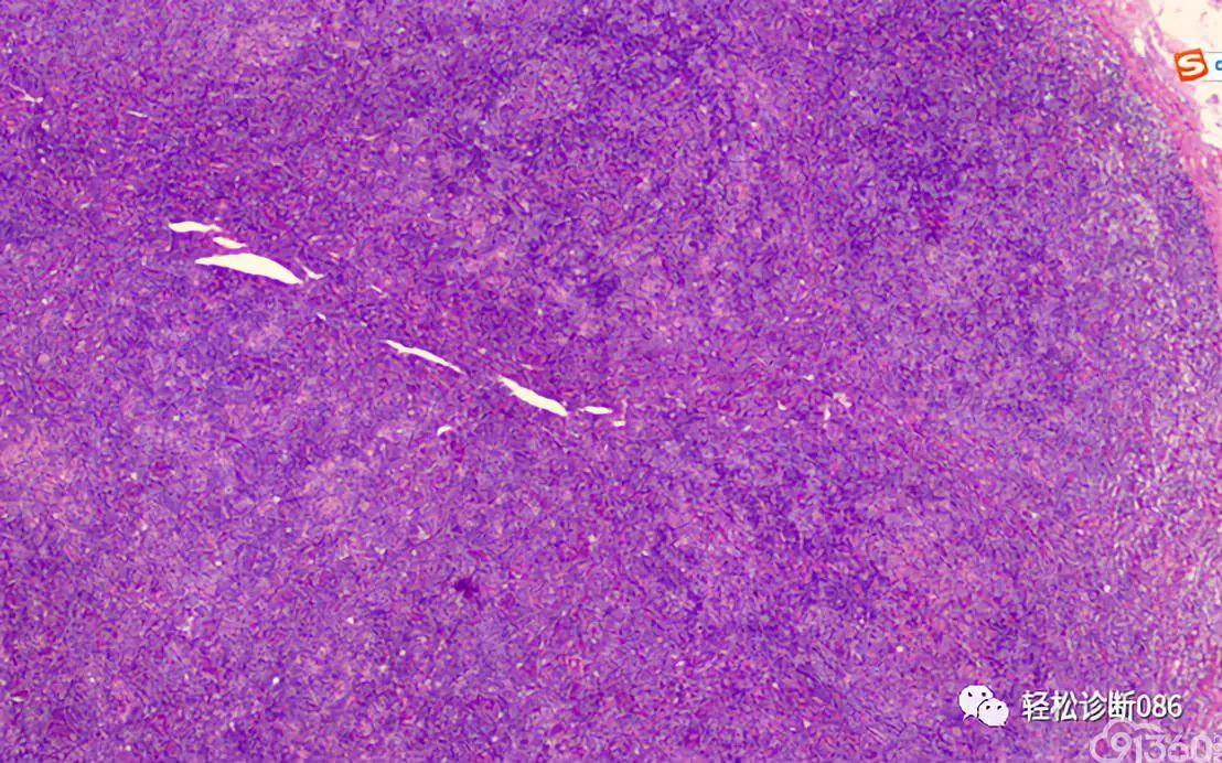 滤泡辅助T细胞(TFH)及其相关淋巴瘤(10)