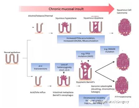 食管癌概述