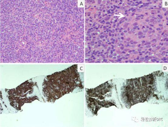 滤泡辅助T细胞(TFH)及其相关淋巴瘤(13)