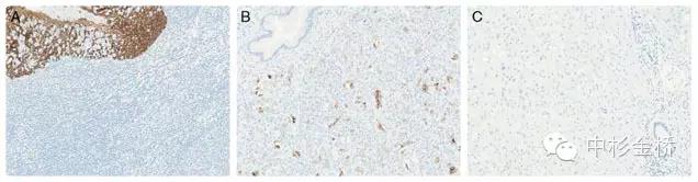 细胞角蛋白