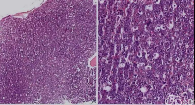文献复习---浆母细胞性淋巴瘤