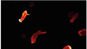 微观世界下的免疫细胞,展示追杀病毒和癌细胞的全过程!