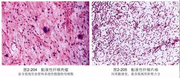 文献复习---神经鞘粘液瘤
